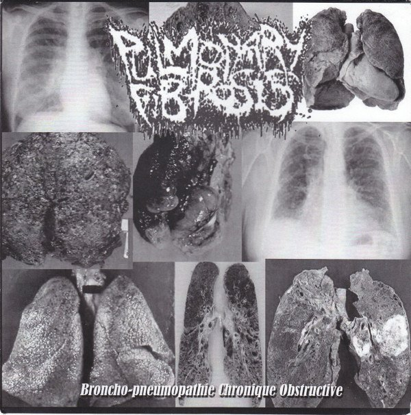 Agathocles - Broncho-pneumopathie Chronique Obstructive / Suppository Of Speed
