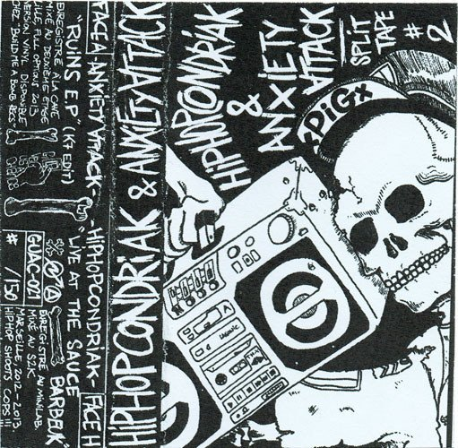 Anxiety Attack - Split Tape #2