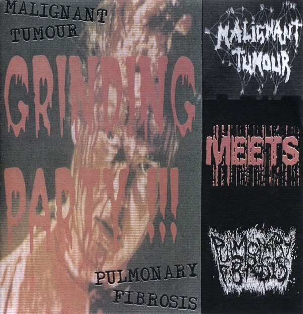 Malignant Tumour - Grinding Party !!!