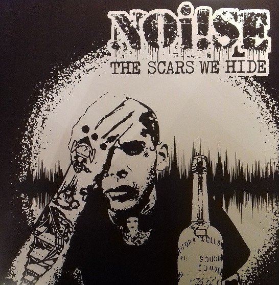 Noise - The Scars We Hide